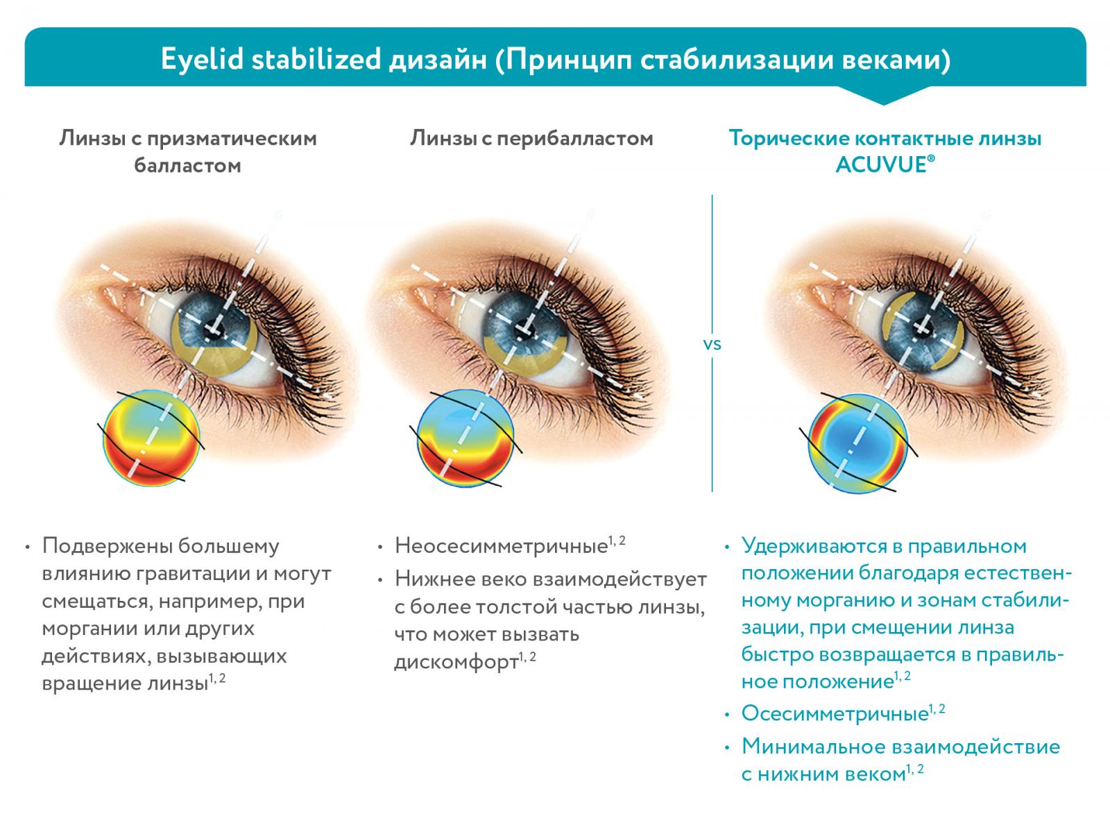 Благодаря Дизайну Ускоренной Стабилизации (ASD) контактные линзы 1-DAY ACUVUE® MOIST for ASTIGMATISM удерживаются на глазах вне зависимости от движений глаз и головы